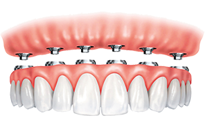 Implant-retained, removable snap-on dentures