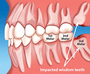 Tooth Extractions Amp Wisdom Teeth In Cullman Dental Arts