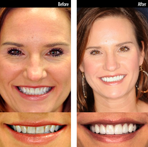 This patient received ten zirconia veneers in the upper arch.