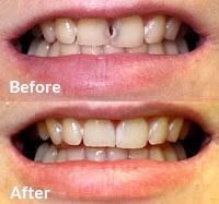 Cosmetic Dentistry in Cullman | Dental Arts | Dental Arts