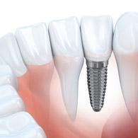 feat-implants