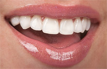 Complimentary ClearCorrectTeeth Straightening Consultation