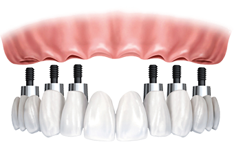 Implant-supported, all-porcelain fixed bridges