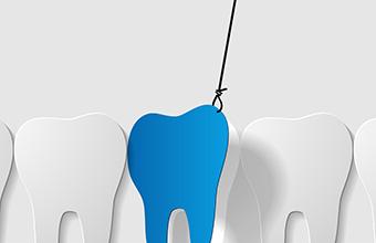 tooth extractions wisdom teeth in cullman dental arts